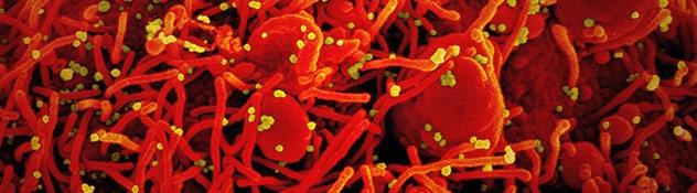 Obrazek posiada pusty atrybut alt; plik o nazwie Fibrosis.png